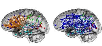 men s and women s brains the truth as research proves the sexes female vs male brain networks men have more connections in each hemisphere and between