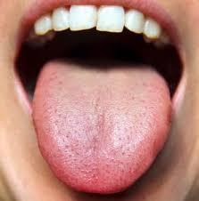 Ayurveda Tongue Chart Ayurvedic Tongue Diagnosis Made Easy Wake Up World
