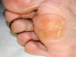 Ten Common Foot Problems Causes And Treatment