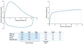 Pft Test Results Chart Spirometry And Reversibility Testing British Lung Foundation