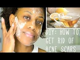 how to get rid of acne scars diy face mask