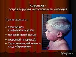 Презентация на тему Краснуха Краснуха острая вирусная  2 Краснуха острая вирусная антропонозная инфекция