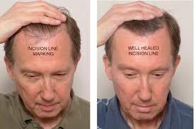electrolysis hair transplant repair image courtesy of jramona