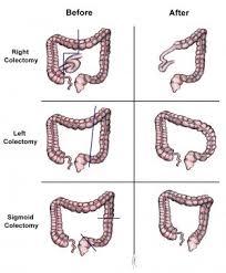 Colon Cancer Practice Essentials Background Pathophysiology