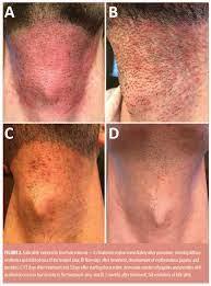 folliculitis induced by laser hair