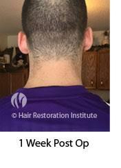 neograft fue hair transplant mn 5