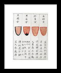 Chinese Tongue Diagnosis Chart 1341 Framed Print