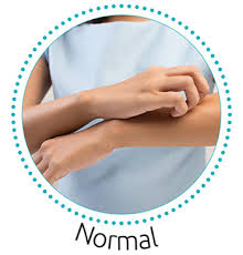 Itchy Skin (Pruritus) - Causes and Treatment Options