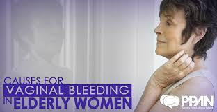 inal bleeding in elderly women