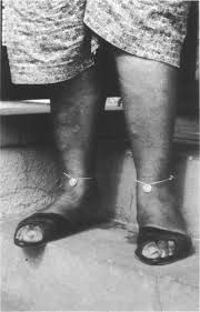 Dimes worn on ankles to cure rheumatism