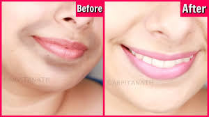 Remove Dark, Black Patches Around Mouth in 15 Minutes || Get Rid of ...