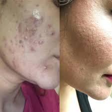 ipl acne redeem spa brton