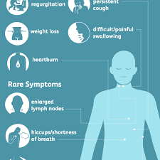 esophageal cancer signs symptoms and