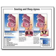 Snoring Sleep Apnea Chart