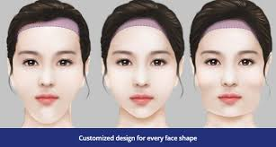 forehead reduction surgery scalp
