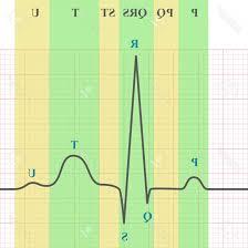 Photostock Vector Marking Scheme Of Ecg On Grid Paper Ekg Graph D