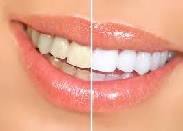 the effects of teeth whitening on crowns veneers and fillings