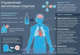 Отравление метиловым спиртом Патогенез признаки клиника  Отравление метиловым спиртом