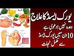 How To Treatment Uric Acid Naturlly At Home In Urdu Hindi