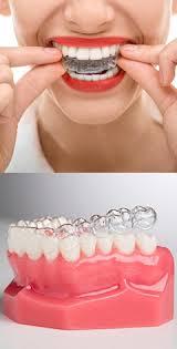 <b>Капы для</b> выравнивания зубов: виды, стоимость. Какие элайнеры ...