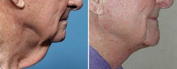 Neck lift, cosmetic Surgery: read