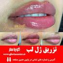 Image result for بهترین دکتر تزریق ژل لب در ونک