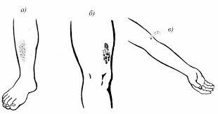 реферат ПДД 1 в кровь ярко красного цвета изливается пульсирующей струей Кровотечение из крупных сосудов аорты сонной бедренной плечевой артерий может в