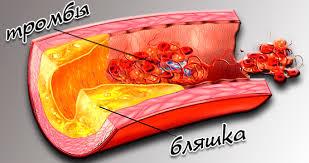 Артериальная гипертония  Готовая дипломная работа на тему гипертоническая болезнь