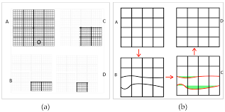 Amsler Chart Working Distance Vision Free Full Text Recent Advances Of Computerized