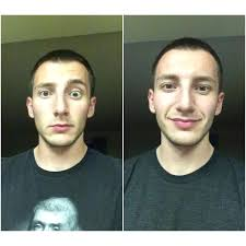 bell's palsy recovery signs