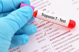 Troponin Levels Chart Normal Troponin Levels What High Levels Mean Plus Causes
