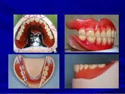 Teeth Setting Teeth Setting Magdalene Project Org