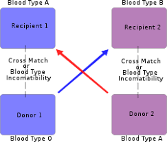Organ Transplantation Wikipedia