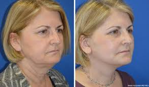 Neck lift images
