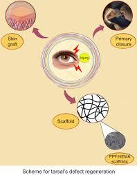 scaffolds for tarsal repair in eyelids