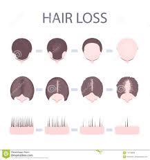 Male Pattern Baldness In Women Mesmerizing Male And Female Hair Loss Stock Vector Illustration Of Baldspot