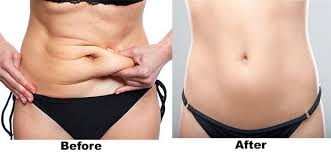 Abdominoplastie bucuresti - oferte