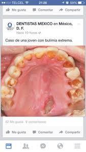 bulimic people teeth. Modren People Dientes De Bulimia On Bulimic People Teeth