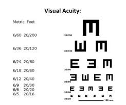Snellen Chart 6 6 A Lady With Right Eye Total Blindness And Actifit Report