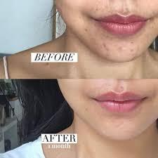 Mederma Gel 20g Remove Scars Treatment Burn Keloid Acne Scar Ebay