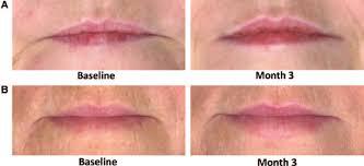 overall lip fullness