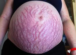 Pregnant mum's rash covered her whole body: 'The pain and the itch ...