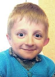 Русфонд Ваня Канунников 10 лет несовершенный остеогенез требуется курсовое лечение 360 000 руб