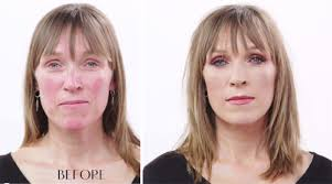 sense and sensitivity how to cover up rosacea