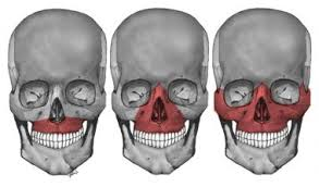 Le Fort Fracture Le Fort I Ii And Iii Maxillary Fractures Medical Coding Pinterest