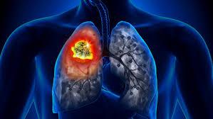 Resultado de imagem para foto de pulmão com trombose pulmonar