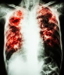 Всемирный день борьбы с туберкулезом марта История и  Туберкулез инфекционное заболевание передающееся воздушно капельным путем Фото puwadol jaturawutthichai