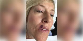 spot above lip was skin cancer