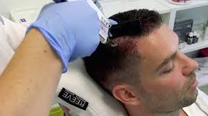 Haarverzorging Bij Dun Haar Haarverzorging Haaruitval