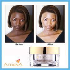 Best, skin, bleaching, creams